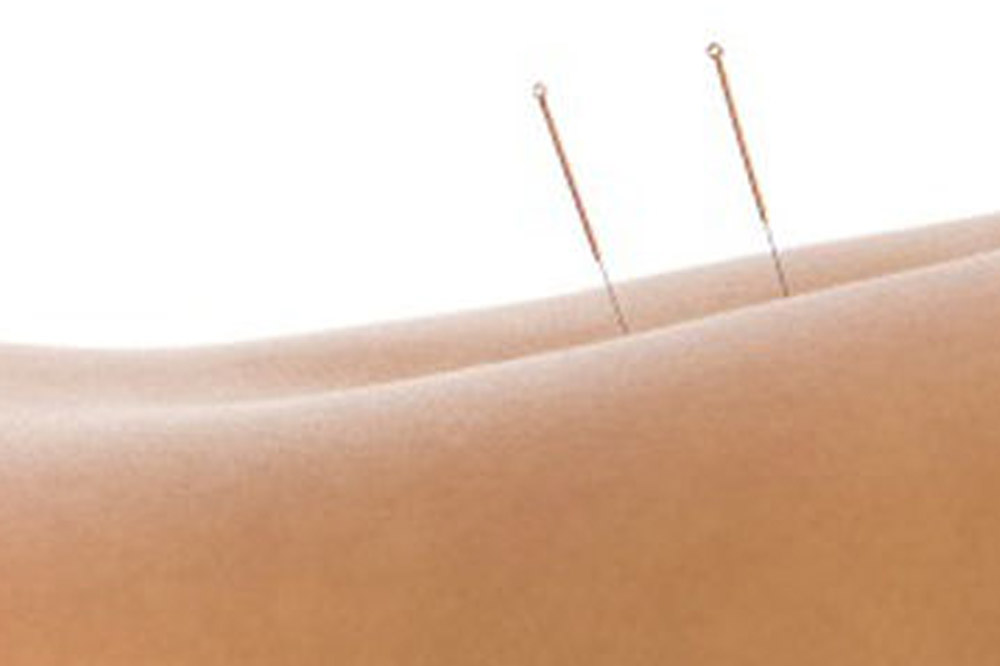 Is Dry Needling a Treatment For You?